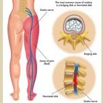 椎間板ヘルニア 坐骨神経痛