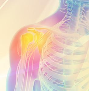 肩の痛み治療