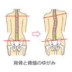 背骨のゆがみ 骨盤矯正 フィジック恵比寿カイロプラクティック